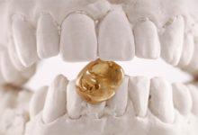 Photo of Как правильно ухаживать за зубными коронками?»