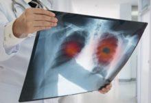 Photo of Пять хворей современности. Самые популярные заболевания и их симптомы»