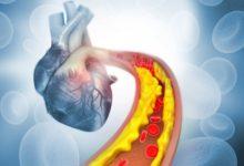 Photo of Липидолог Сергей Недогода: «Первый год после инфаркта— самый опасный»»