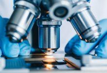 Photo of Что за микроскоп для выявления рака внедрили в Карелии?»