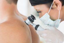 Photo of Чёрная метка. Как защититься от меланомы?»