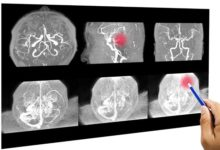Photo of Что такое разрыв аневризмы головного мозга?»