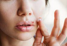 Photo of Последствия герпеса. К чему могут привести высыпания на губах?»