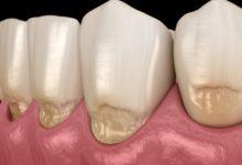 Photo of Что вредит зубной эмали и можно ли ее восстановить?»