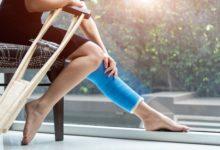 Photo of Немедленно к врачу! Почему переломы и разрывы связок очень опасны»