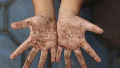Photo of Болезни «грязных рук». Что это такое и чем они опасны?»