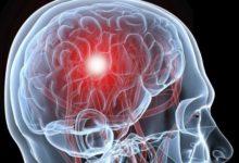 Photo of Что такое ишемический инсульт?»
