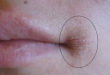 Photo of Что делать, если губы трескаются в уголках рта?»