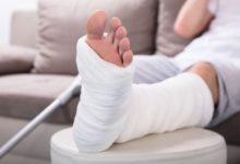 Photo of После перелома кость становится крепче и больше не ломается?»