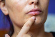 Photo of Почему появляется лихорадка на губах?»