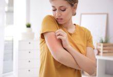 Photo of Под прикрытием. Почему может появляться ложная аллергия?»